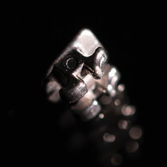 Metal Bracket einer festsitzenden Zahnspange